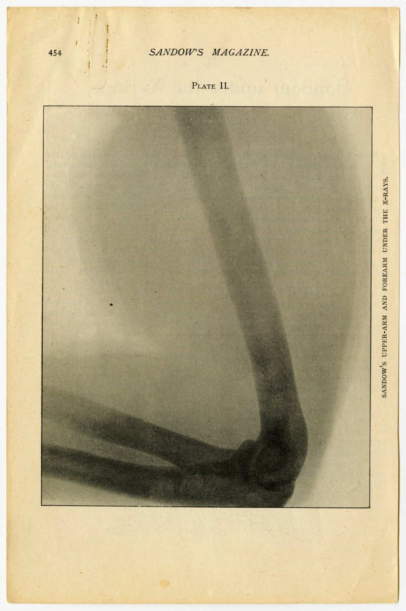 Sandow's upper-arm and forearm under X-rays